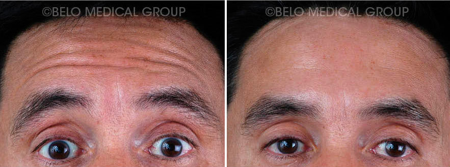 Botox And Fillers Gallery Belo Medical Group