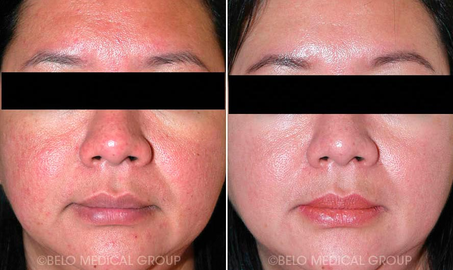 Acne Management and Acne Scars - Belo Medical Group