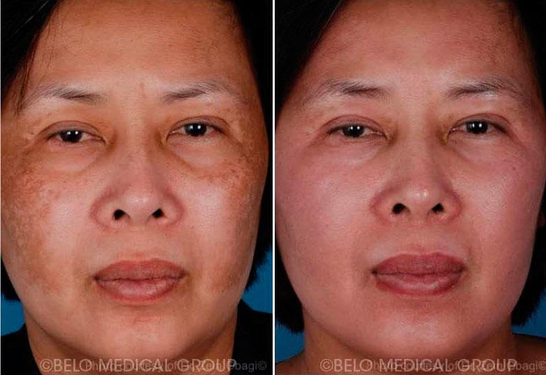 Stretchmarks Cellulite Scars And Keloids Belo Medical