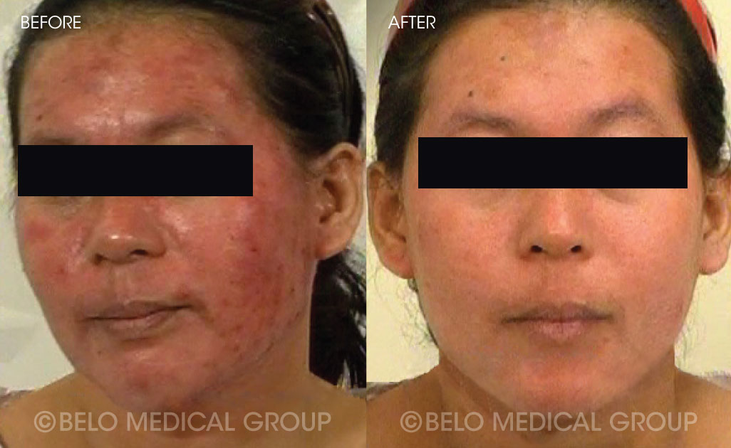 Belo Acne Program Before and After #14
