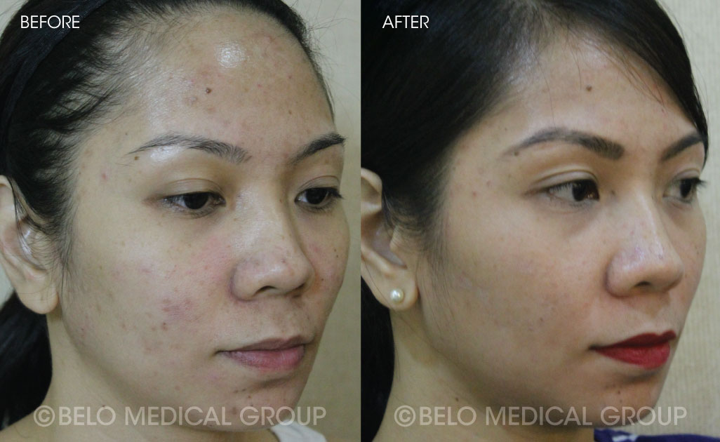 Belo Acne Program Before and After #10