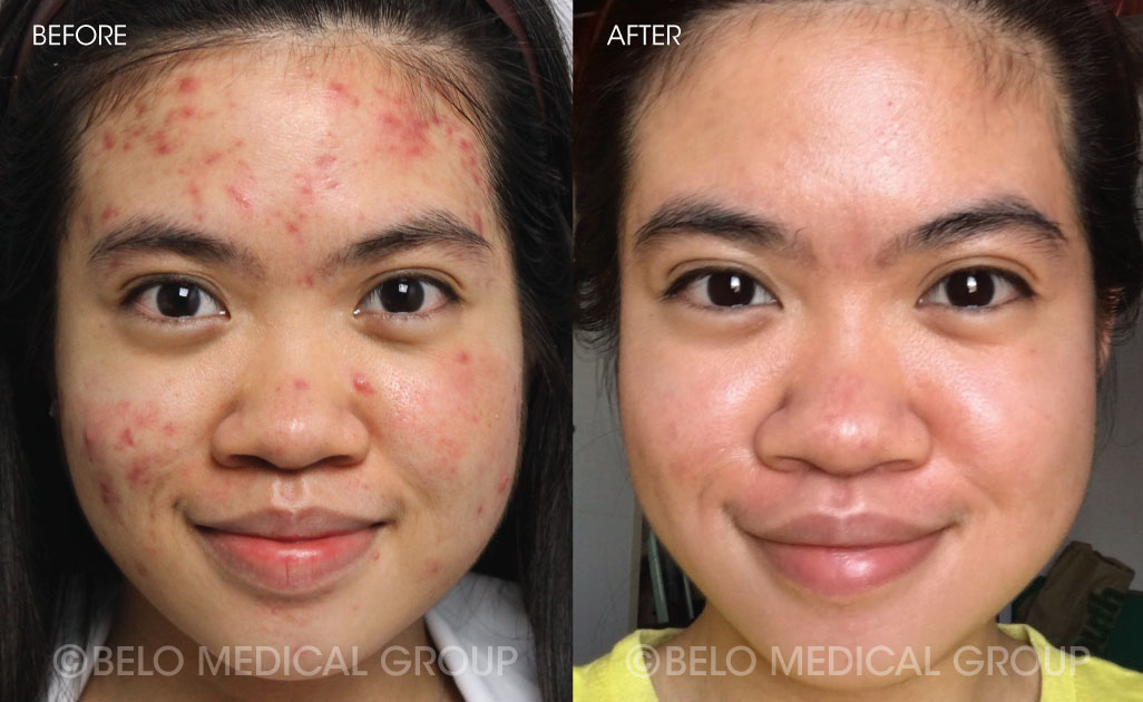 Belo Acne Program Before and After #1