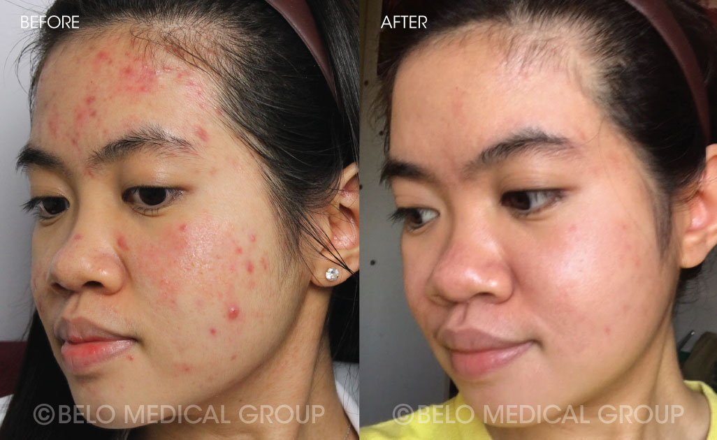 thesis on acne vulgaris For over eight years, our researchers on topics related to acne have assisted college graduates, thesis topics on acne school learners here i am.