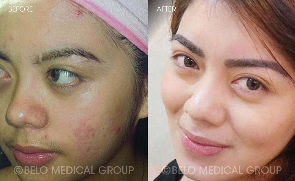 FA-Belo-Acne-Program-Before-and-After-14