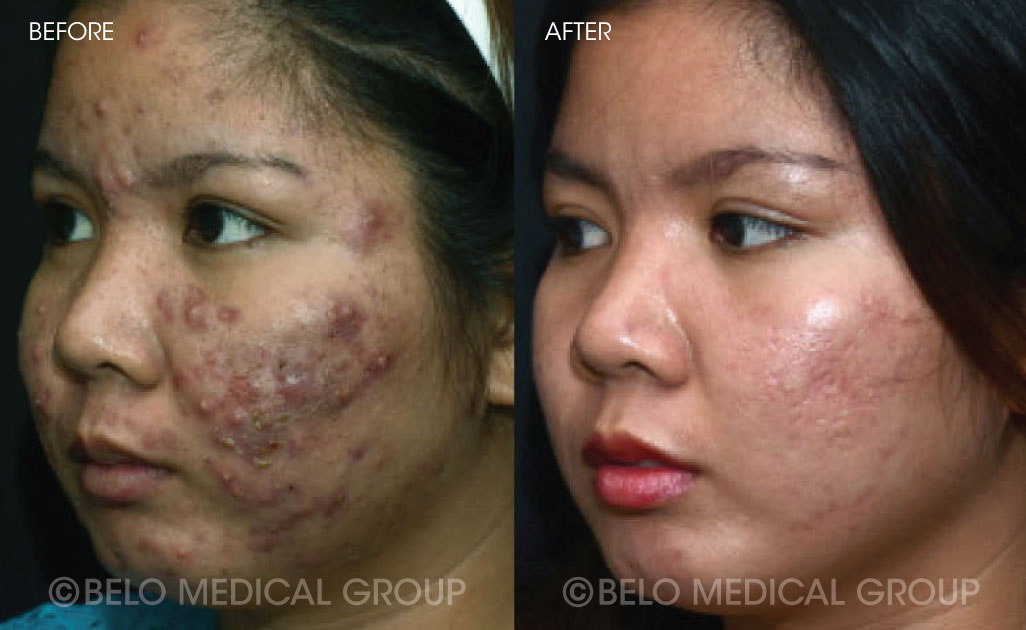 FA-Belo-Acne-Program-Before-and-After-15