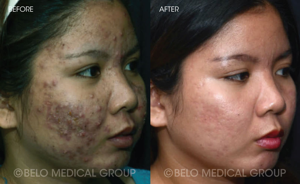 Belo Acne Program Before and After #6