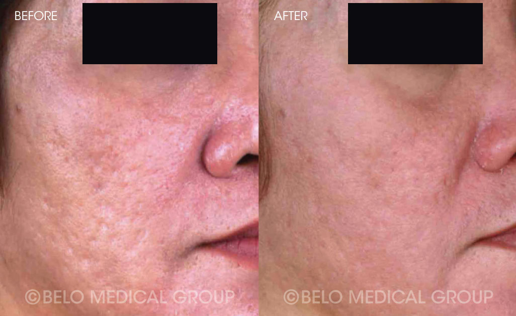 FA-Belo-Acne-Program-Before-and-After-2
