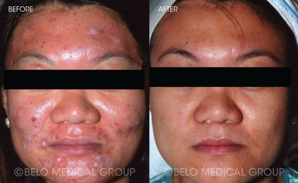 Belo Acne Program Before and After #12