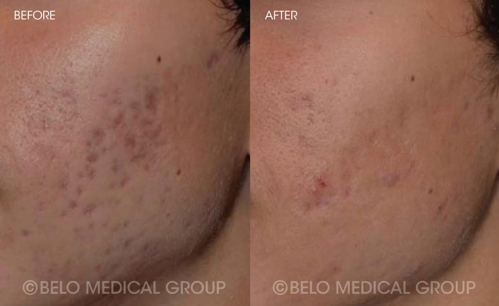 FA-Belo-Acne-Program-Before-and-After-5