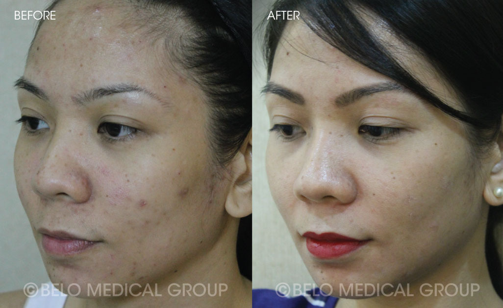 Belo Acne Program Before and After #11