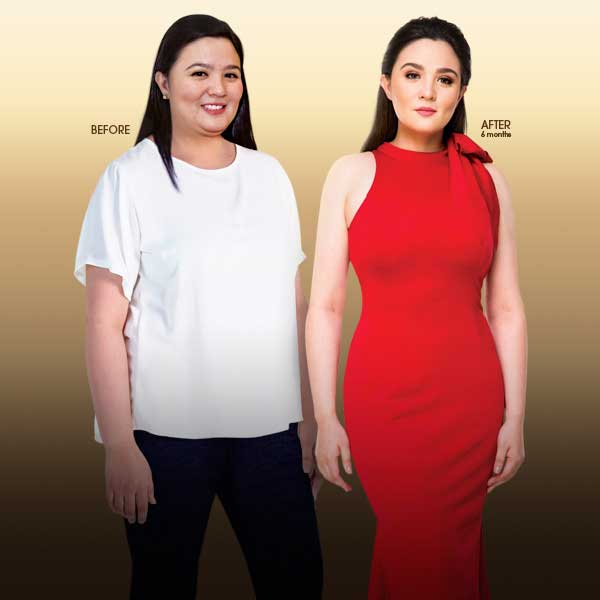 Sunshine Dizon Before and After Liposuction