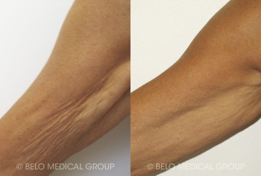 Before and After - Venus Legacy Patient #2
