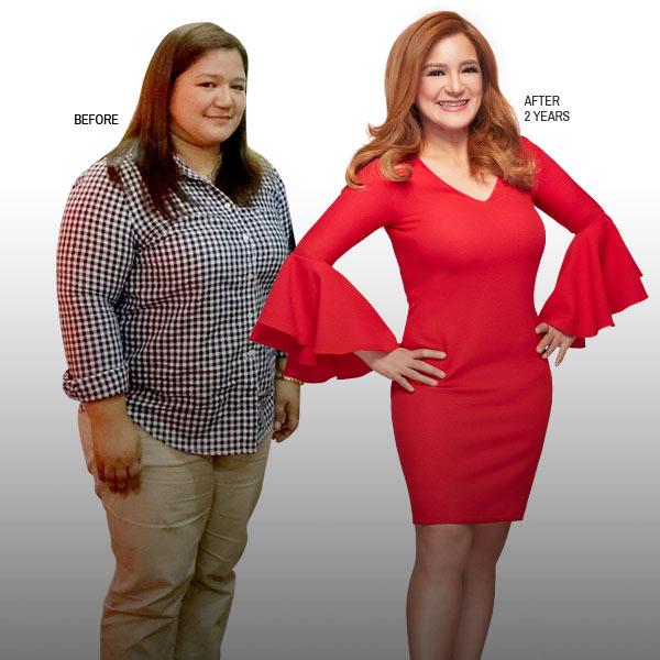 Dr. Mia Gapuz Smart Liposuction Patient