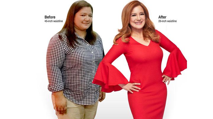 4 Reasons Why Women Undergo 360° Liposuction | Belo Medical Group