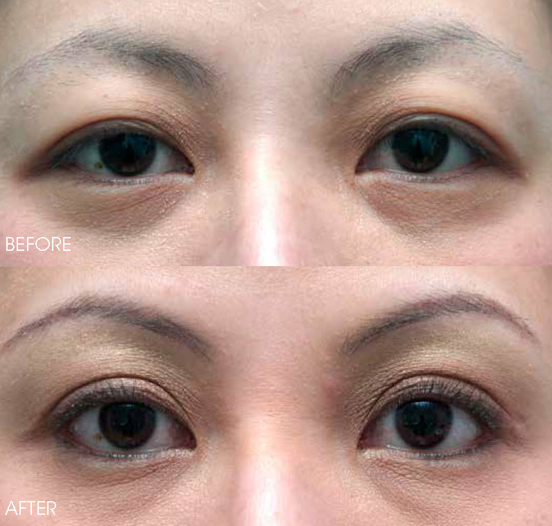 Laser Blepharoplasty | Eyebag and Eyelift Removal | Belo