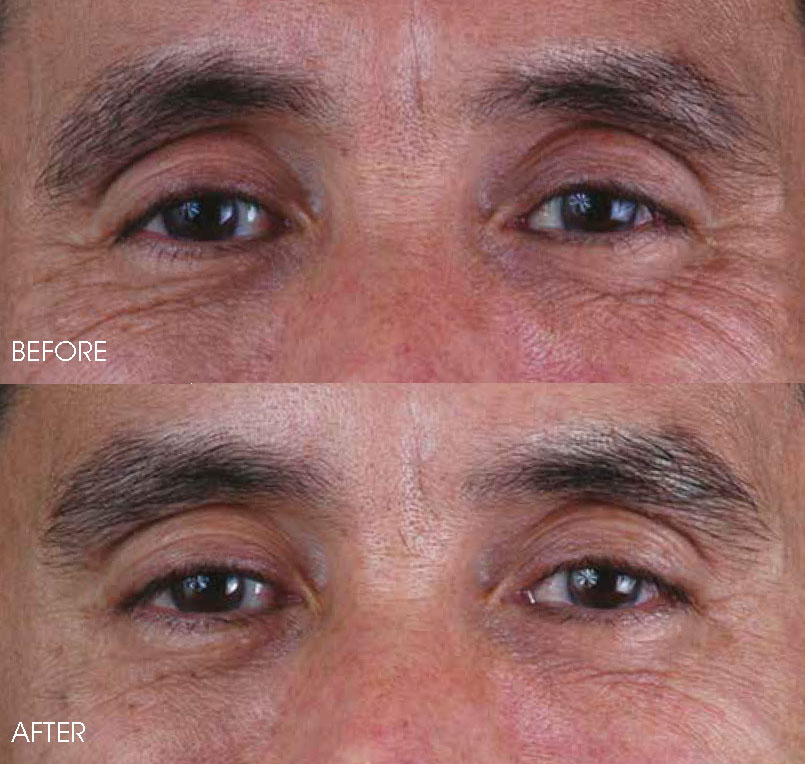 Botox Treatment in the Philippines   Belo Medical Group