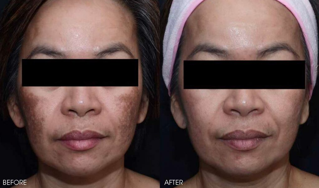 Fraxel Laser Treatment in the Philippines | Belo Medical Group
