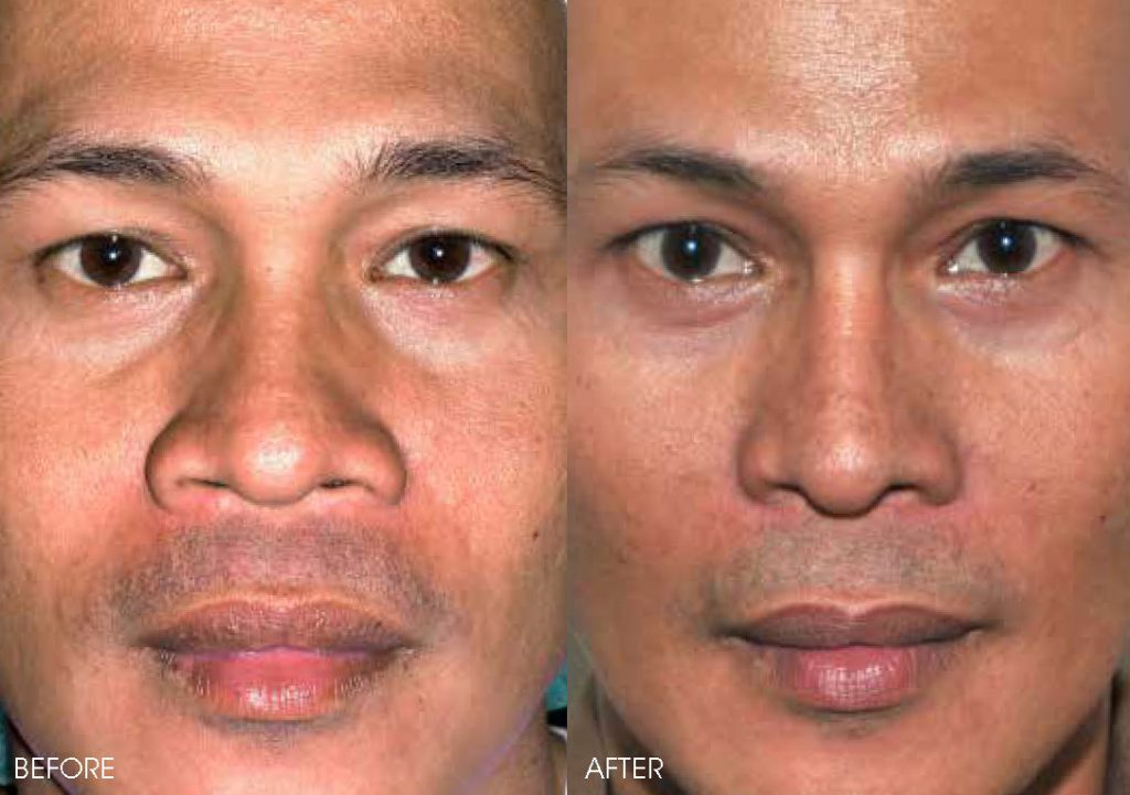 Rhinoplasty Treatment | Alar Trimming | Belo Medical Group