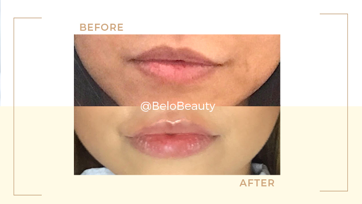 Baby Lip Fillers Are The Next Big Thing | Belo Medical Group