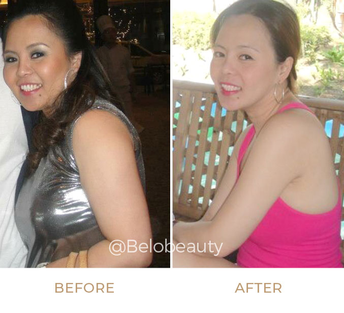 Florence Magtalas, R.N. before and after get arm liposuction