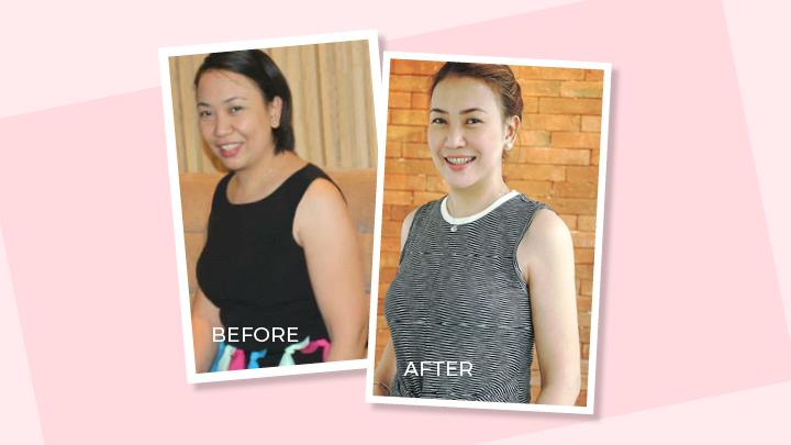 Get Arm Liposuction