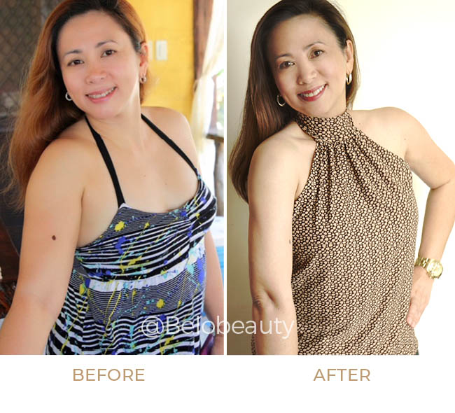 Ma. Cecilia M. Gregorio before and after get arm liposuction