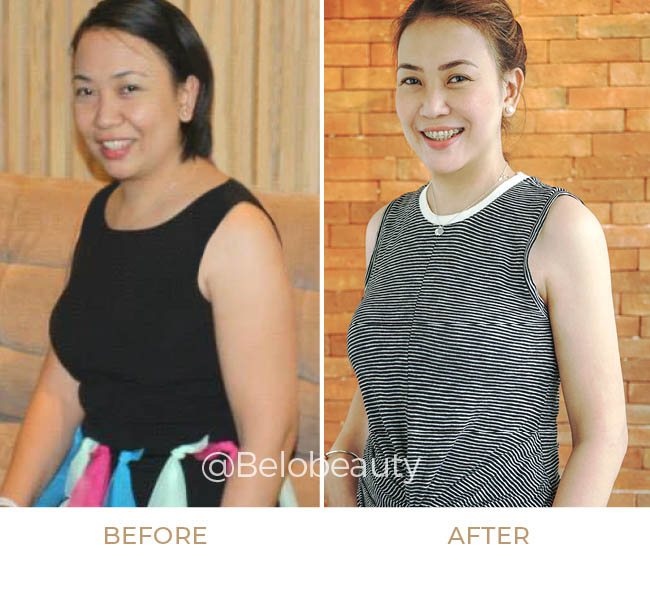 Veronica Baluyut Before and After get Arm Liposuction