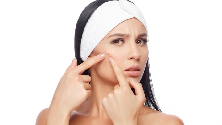 Effective Acne Dark Spot Treatments and Products | Belo Medical Group