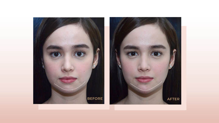 Treatments That Can Help You Get A V-Shaped Face | Belo