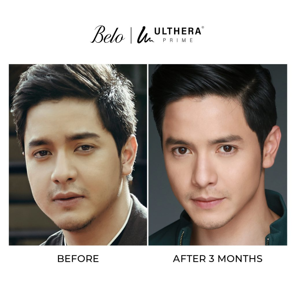 alden richards before and after ulthera treatment