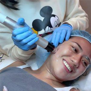 Morissette Skin Genius Treatment
